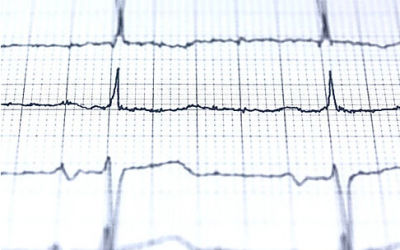 Study finds exhaustion to be linked with irregular heartbeat.